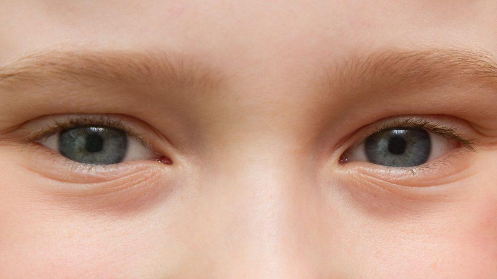Ciri-ciri Mata Minus (Rabuh Jauh) pada Anak-anak