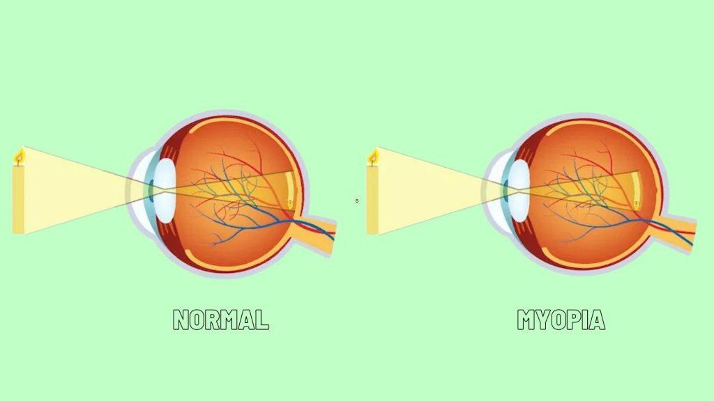 Perbedaan Kondisi mata normal dan minus